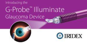G-Probe® Illuminate