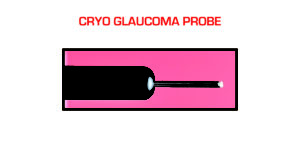 Cryo Glaucoma Probe